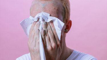 jongen met acne